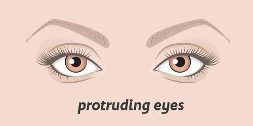 Hervorstehende Augen